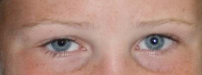 eyes - ben